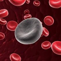 Leucemia di classe